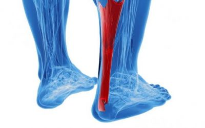 Achilles Tendinopathy (Pain)